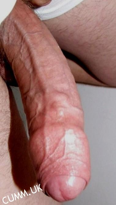 foreskin huge hung